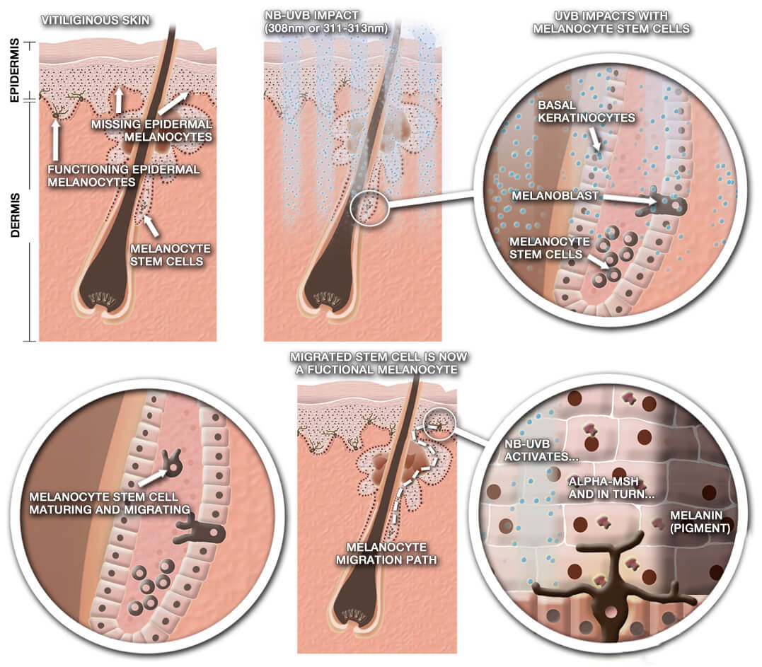 Figure 7. The process of melanocyte migration and repigmentation in vitiliginous skin following NB-UVB therapy.