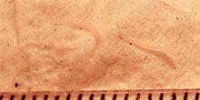 Threadworm. Image: Salvadorjo from Wikimedia commons