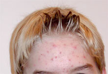 Acne (acne vulgaris) occurs when the skin pores become clogged with excess sebum (oil), dirt and dead skin cells