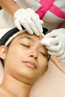 Physicians (or beauty therapists) are able to extract comedones manually without scarring the skin.