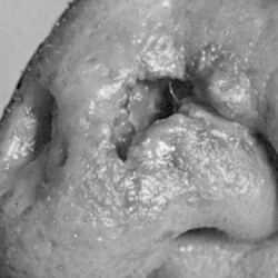 A basal cell carcinoma