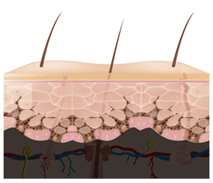 Skin Layers - epidermis (not to scale)