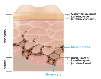 A cross section of skin highlighting melanocytes, the epidermis and dermis (not to scale)