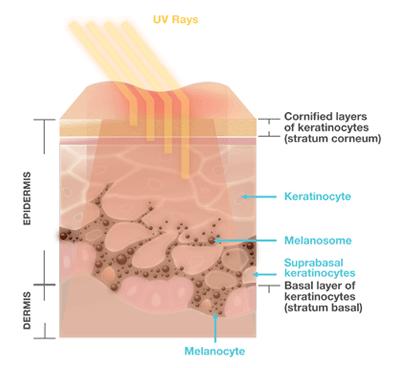 A demonstration of sunburn on skin