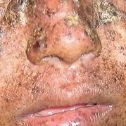 Xeroderma Pigmentosum. Warning: graphic medical content