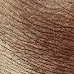 Wrinkled photoaged skin