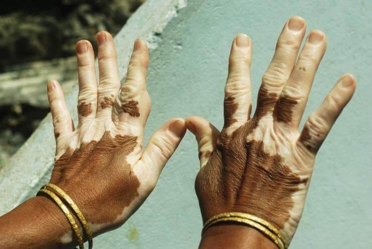Figure 2: Hands of an African American vitiligo patient