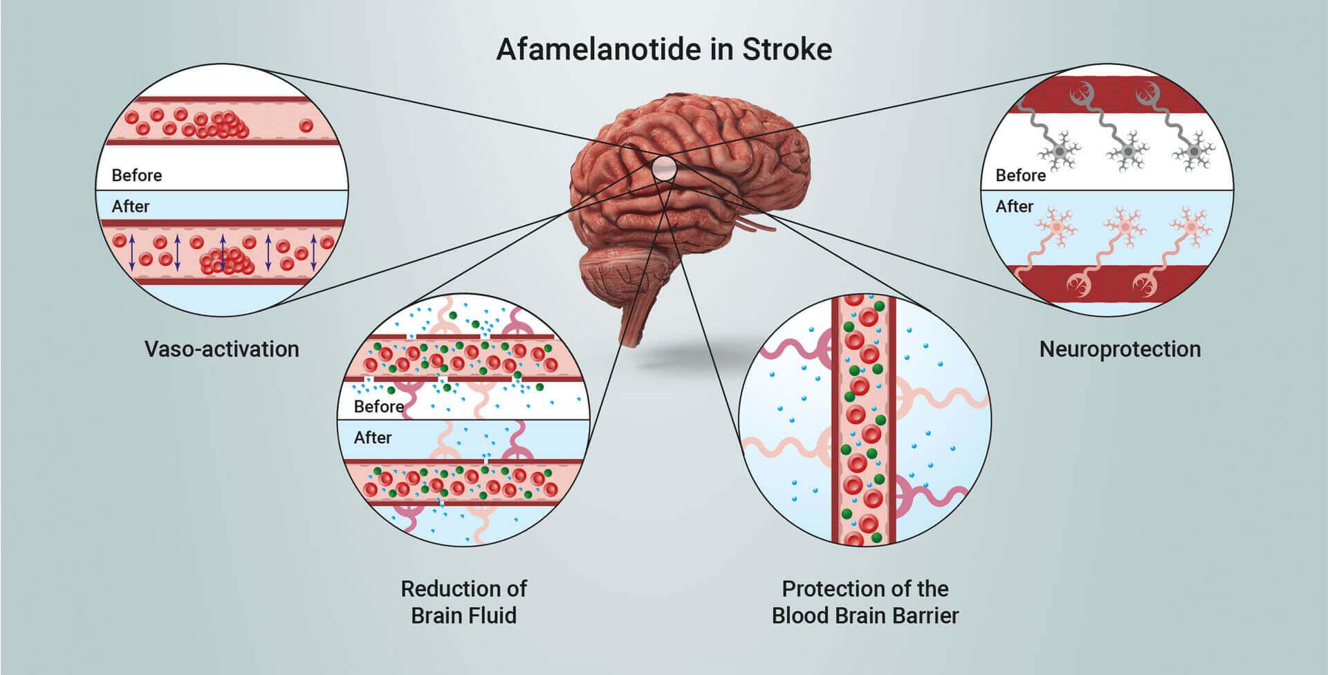 Afamelanotide in stroke