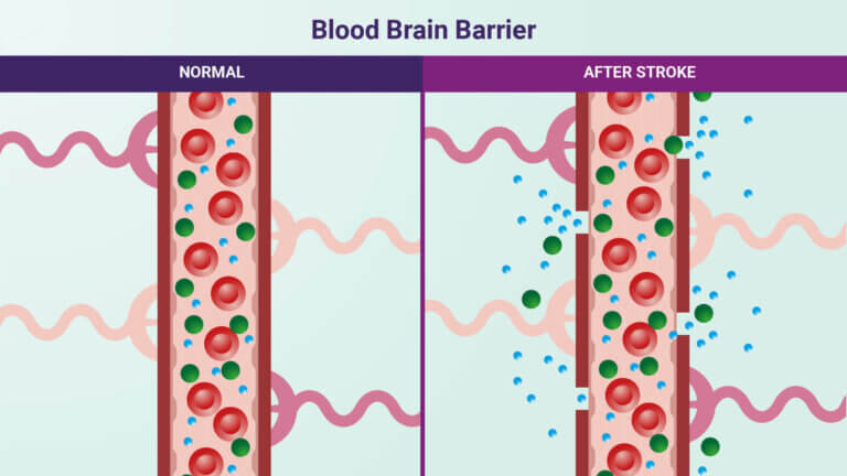 Blood brain barrier, before and after