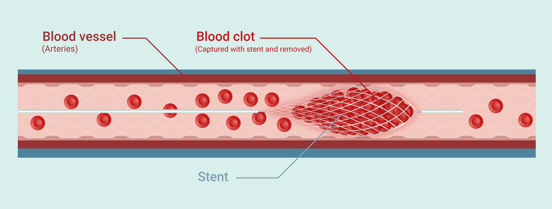Brain arterial stent