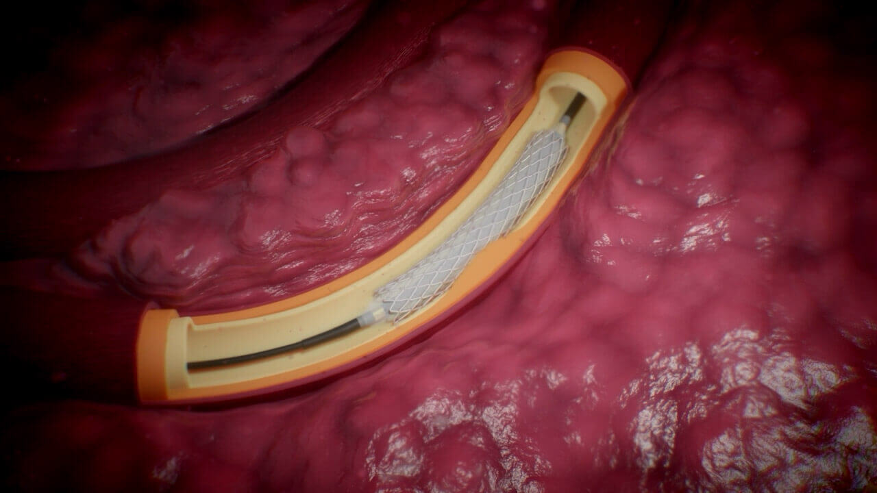 Stroke treatment, mechanical thrombolysis